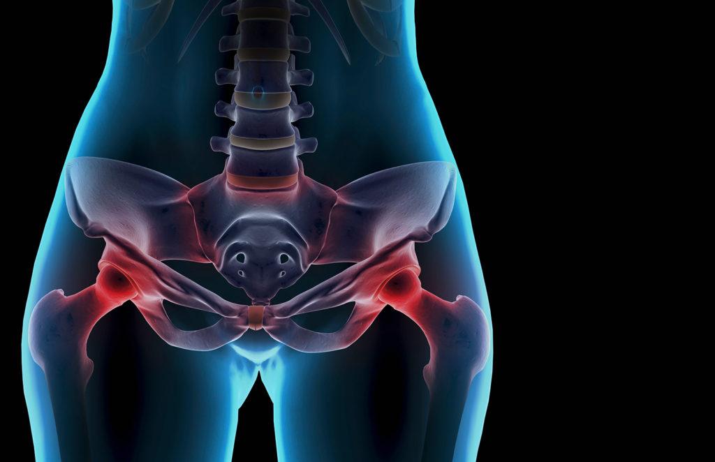 Терапия тазовой боли, связанной с эндометриозом: преодоление неразрешенных проблем