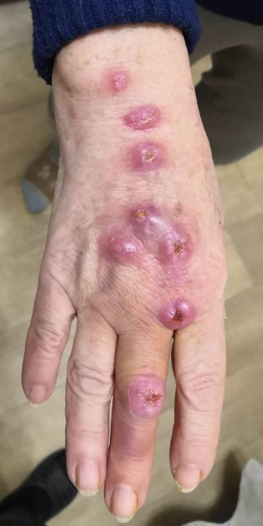 Кожно-лимфатический споротрихоз: клинический случай