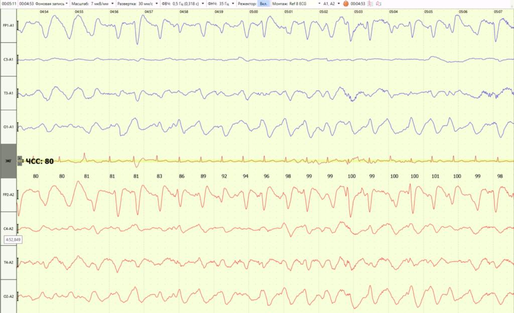 Трифазные волны на электроэнцефалограмме у пациентов с энцефалопатией и их диагностическое значение. Обзор литературы.