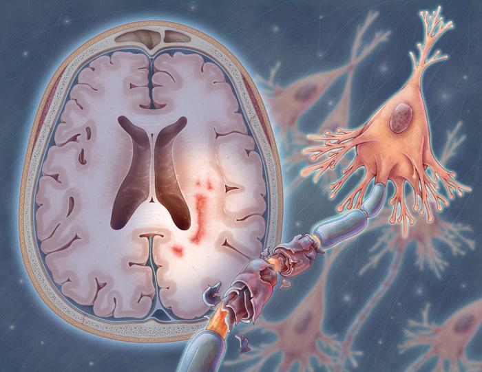 Состоялась премьера таргетного подхода к лечению пациентов с вторично-прогрессирующим рассеянным склерозом