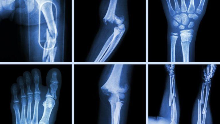 Клиническая диагностика переломов позвонков при остеопорозе (обзор литературы)